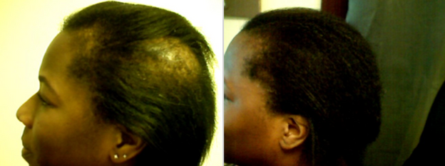 Naturally reversing Traction and Alopecia Areata