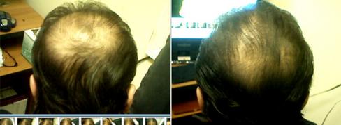 Naturally reversing Male pattern hair loss