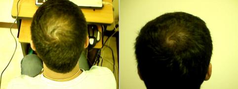 Naturally reversing Androgenetic Alopecia