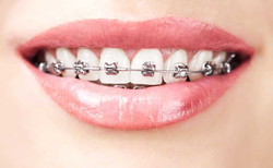 The Invisible Orthodontist