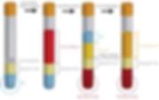 platelet_rich_plasma_vial