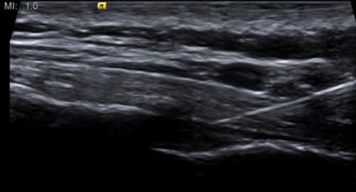 caudal_epidural_needle