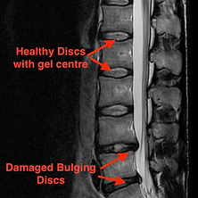 MRI_scan_lumbar.png