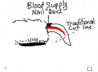How does toenail length change posture?