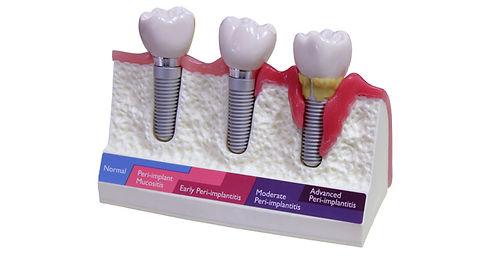 Peri-Implant-Diseases.jpg