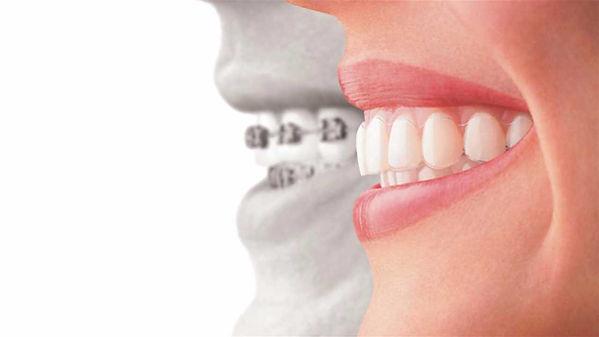 aparelho-dental-manaus.jpg