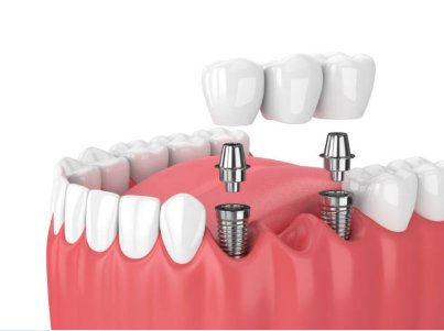 Dental-implants-Las-Vegas.jpeg