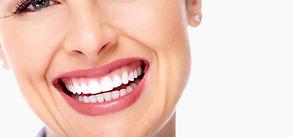 gummy-smile.jpg