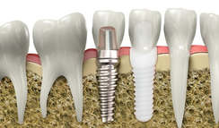 why-ceramic-implants-age-well