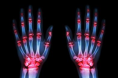 hand pain.jpg