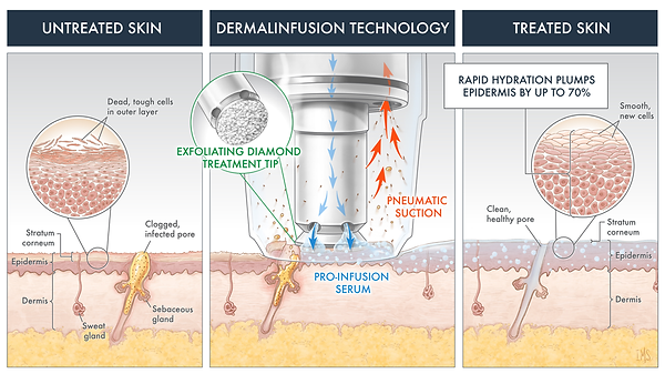 Dermalinfusion-Technology.png