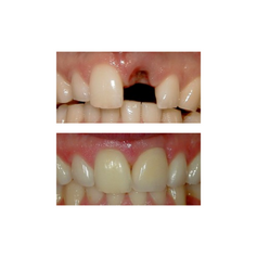 Before: Patient needs a Single Tooth Replacement of one Upper Central Incisor. After: Smile and function restored with a Single Implant and an All Porcelain Crown (Cap) that fits securely over the implant.