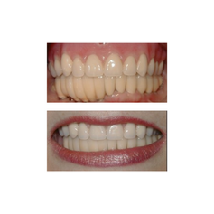 Before: Patient needs Upper and Lower Arch Rehabilitation. After: Great smile, chewing function, and facial tissue support possible with an Upper Denture that is supported with Implants and Lower Implants and Crowns.