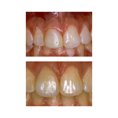 Before: Front (left) Central tooth has a poor restoration. Does not look natural and is not contoured properly to match the gumline of the rest of the teeth. After: Replaced with an All Porcelain Crown (no metal). Tooth is now contoured to match the rest of the gumline. Restored tooth looks very natural and matches the shape and color of the patient's teeth.
