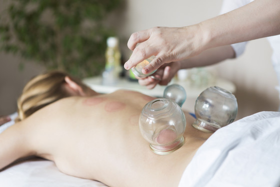Cupping Therapy - How it Works & Safety