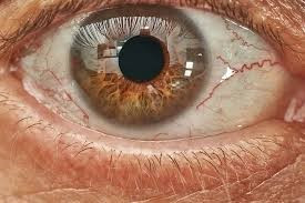 Bloody Eyeballs:  Who Will Make Health Care Decisions for You if You Can't?
