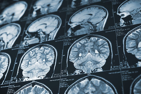 MRI.jpeg