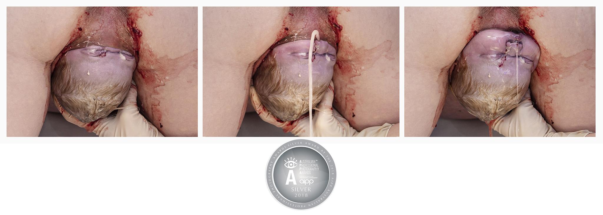 APPA Silver Distinction Award