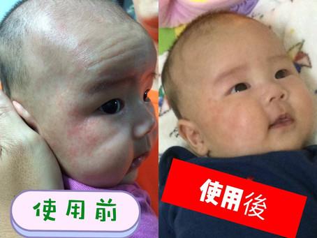 好吸收、無復發的寶寶護膚霜