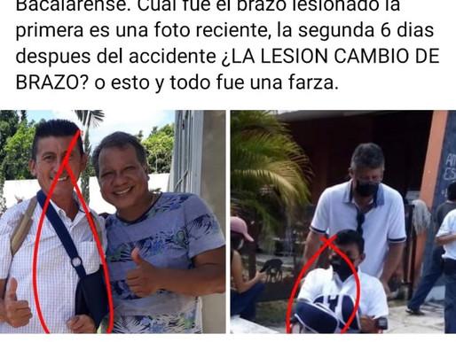 """Exhiben Engaño de """"Chepe"""" Contreras, por Confundir Brazo Lesionado"""