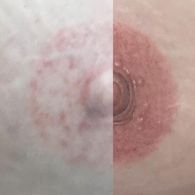 Nipple Fail