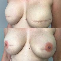 Scar Reduction