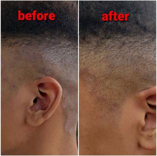 Razor Burn & Skin Irritation 1 Application