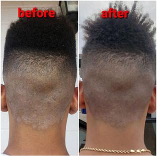 Razor Burn and Skin Irritation 1 Application
