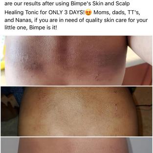 Severe Eczema Day 1-4