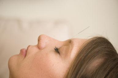 client recieveing acupuncture treatment
