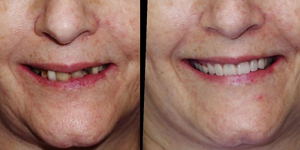 all on 4 dental implants before and afte