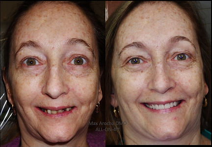 All on 4 dental implants before and after.jpg