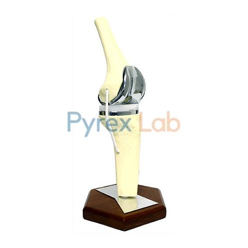 Knee Implant Model