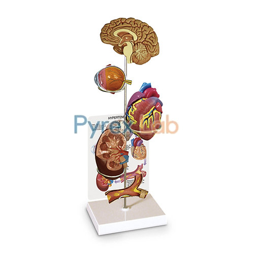 Hypertension Model 6 Parts