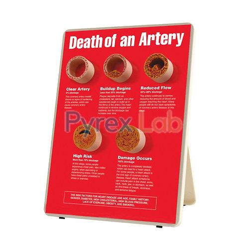 Death of An Artery Models