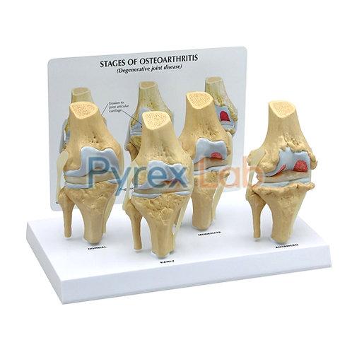 Knee Arthritis Model