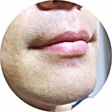 介護施設,髭剃り,安全,シェービング,シェーバー