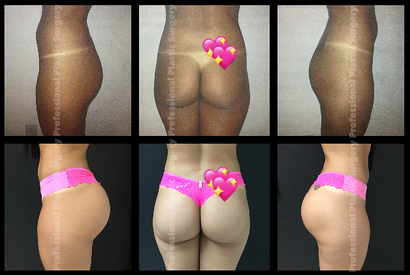 GLUTEAL IMPLANTS