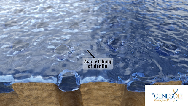 GENESE3D Acid etching of dentin