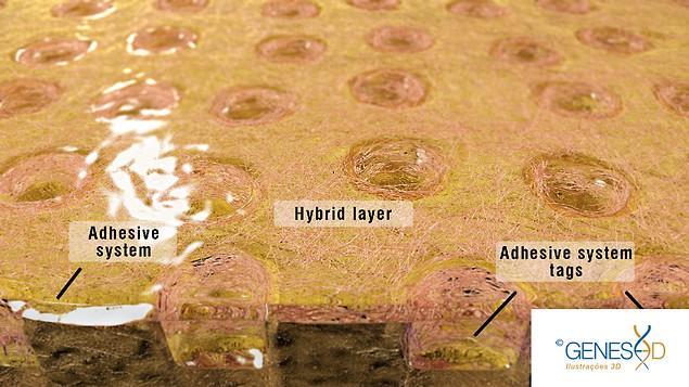 GENESE3D Hybrid layer in dentine