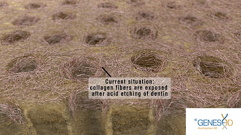 GENESE3D Collages fibers in dentin