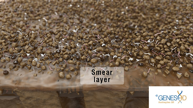 GENESE3D Smear layer of dentin