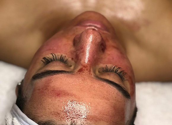 Book ANY of our Facials