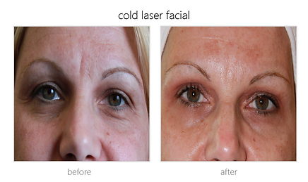 cold laser facial reviews