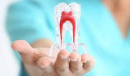 Endodontic.jpg