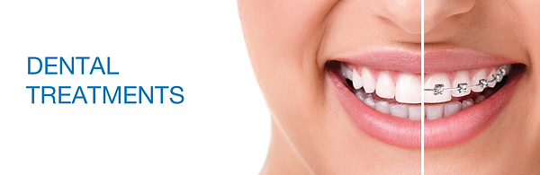 Dental treatmrents.png