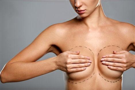 Malformations des seins et du thorax