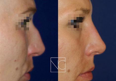 Photographie avant après et résultat intervention