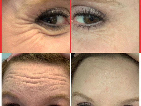 Think You're Too Young or Too Old for Botox? Think Again.