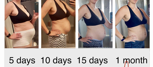 Can we please talk about the post partum body!